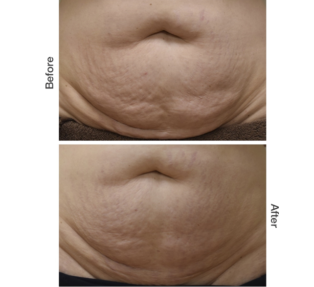 Microneedling Belly Stomach